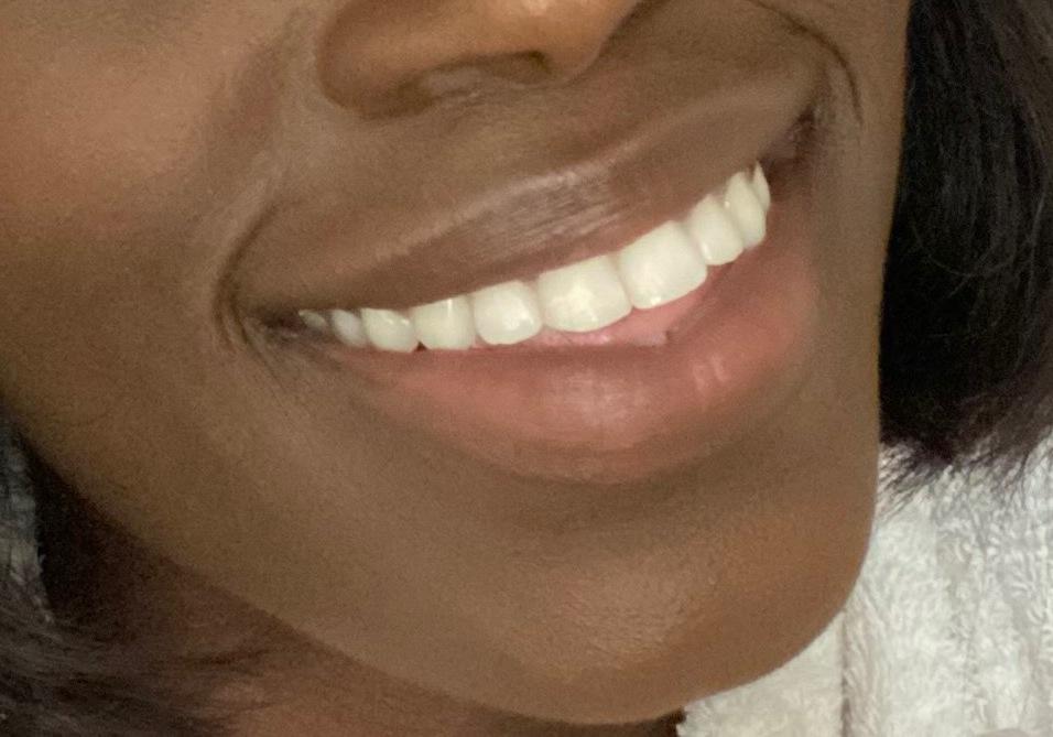 Teeth After 3 weeks